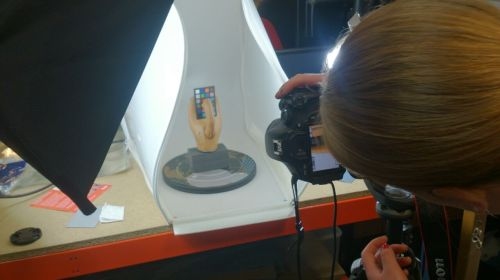 Postman's prosthetic hand being photographed